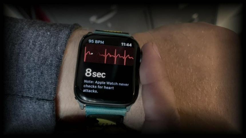 Người phụ nữ thoát cơn nhồi máu cơ tim nhờ Apple Watch